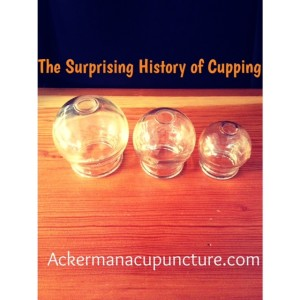 Surprising HistoryCupping