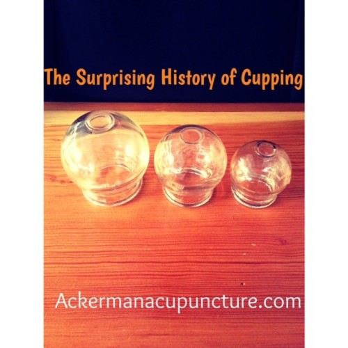 The Surprising History of Cupping (Anoka Acupuncture Back Pain Therapy Clinic)