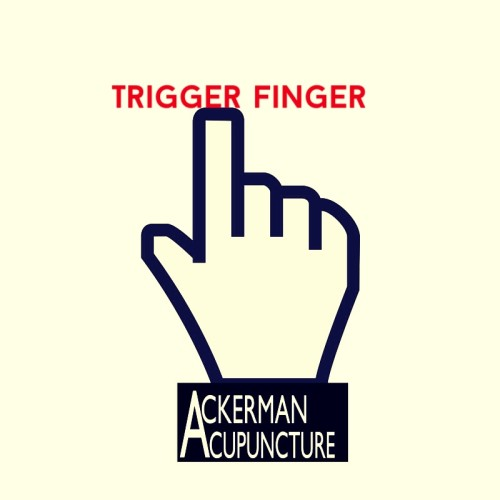Don't Get Stuck with Trigger Finger- Get Acupuncture (In Anoka)!