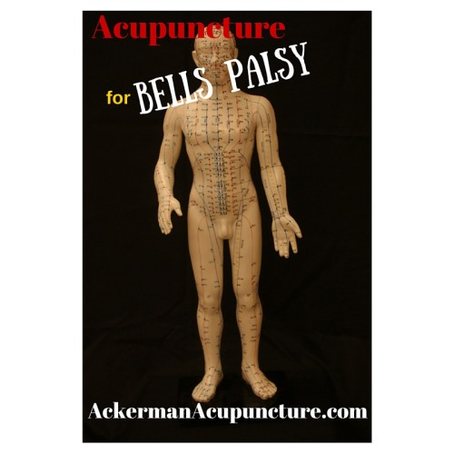 Did You Know Bells palsy Improves with Acupuncture (in Anoka)?