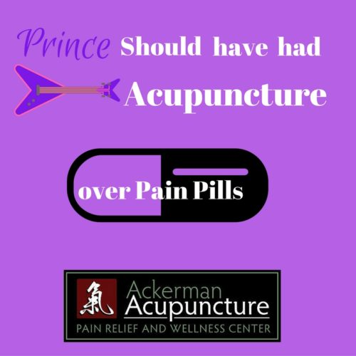 Prince Should Have Tried Acupuncture For Chronic Pain Instead of Opioids (near Ramsey, MN)!