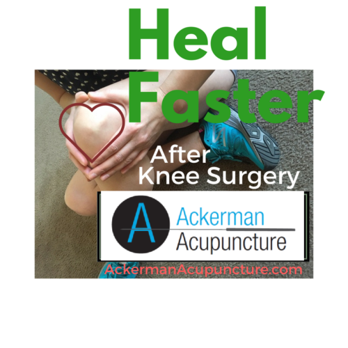 Heal Faster after Knee Surgery with Acupuncture (in Blaine, MN)