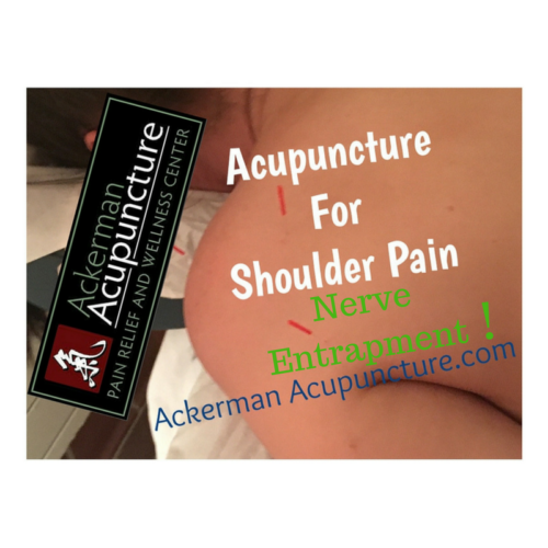 Treating Shoulder Pain Nerve Impingement At Ackerman Acupuncture (in Blaine)