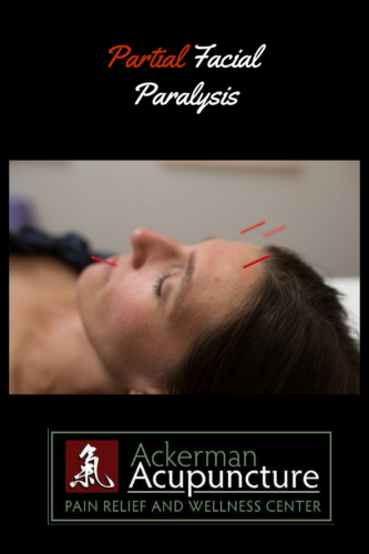 Acupuncture Treats Partial Facial Paralysis (near Andover, MN)